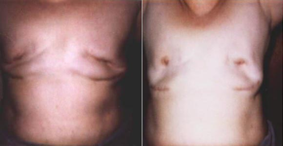 Photos of what happens when removing siliconedeforms the breast. Click for larger view.